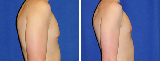 "19 years old, 6'1"", 165lbs, excision of excess male breast tissue"