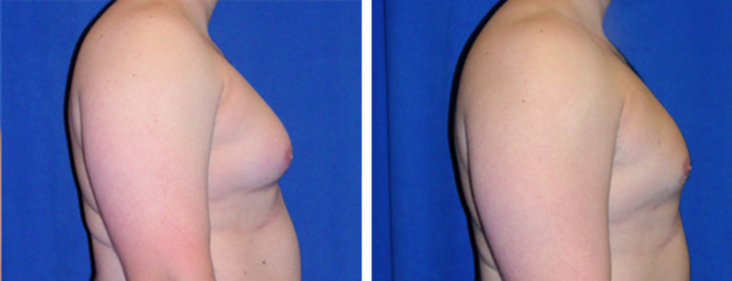 "27 years old, 5'10"", 220lbs, liposuction removal of 875gms excess male breast tissue"