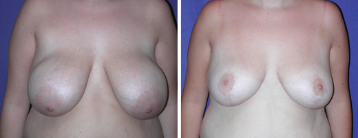 "21 years old, 5'3"", 155lbs, approx 505gms removed from each breast, Preop 36DD to Postop 38C"