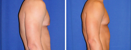 "21 years old, 6'2"", 198lbs, excision of excess male breast tissue"