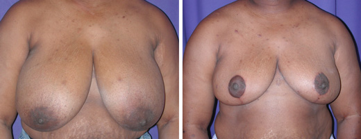 "34 years old, 5'7"", 200lbs, approx 1220gms removed from each breast, Preop 40DD to Postop 38D"