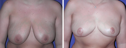 "26 years old, 5'6"", 190lbs, approx 325gms removed from each breast, Preop 38DD to Postop 38C"