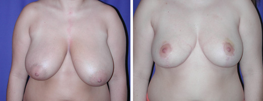 907 breast reduction st charles plastic surgery dr ghaderi featured
