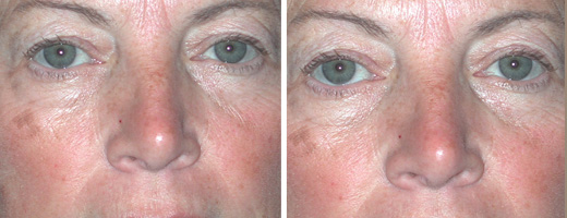 "54 years old, 5'2"", 130lbs, upper and lower eyelid lift"