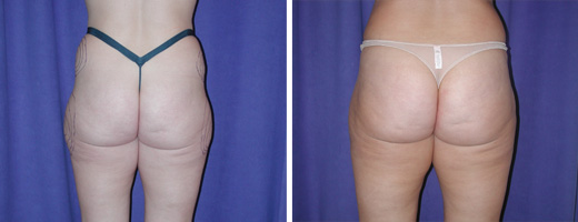 Liposuction – Thighs