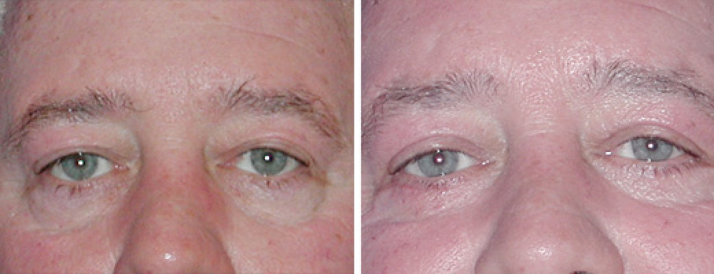 "50 years old, 5'10"", 215lbs, male, upper eyelid lift"
