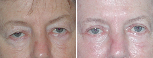 "67 years old, 5'4"", 138lbs, upper & lower eyelid lift"
