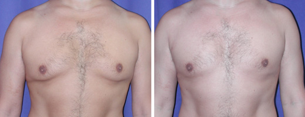 "37 years old, 5'4"", 137lbs, 500g removed, liposuction of the chest"