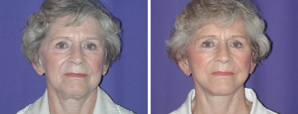 """75 years old, 5'0"""", mini face lift"""