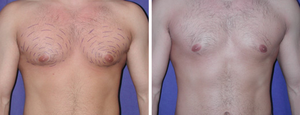 "22 years old, 5'11"", 192lbs, 400g removed, liposuction of the chest"