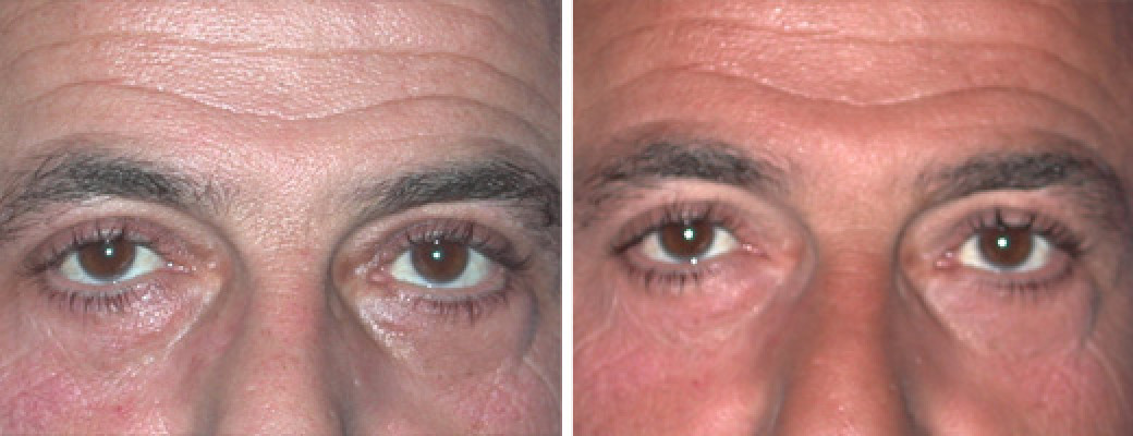 45 years old, male, upper & lower eyelid lift