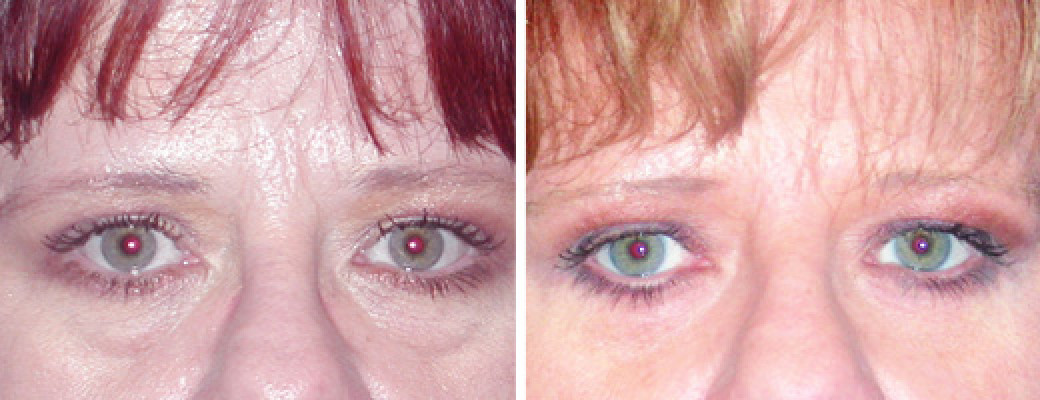 "40 years old, 5'9"", 165lbs, lower eyelid lift"