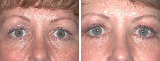 "46 years old, 5'6"", 185lbs, lower eyelid lift"