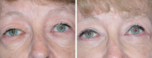 "66 years old, 5'0"", 105lbs, upper and lower eyelid lift"