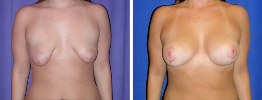 "19 years old, 5'5"", 155lbs, Breast Lift with 275cc Saline Implants, Preop 36B to Postop 36C"