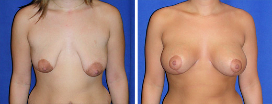 "19 years old, 5'3"", 145lbs, Peri-areolar Breast Lift with 275cc Saline Implants"