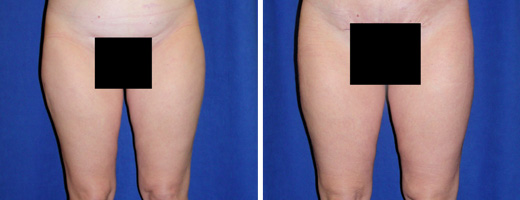 "47 years old, 5'5"", 135lbs, 1500g removed, liposuction of thighs"
