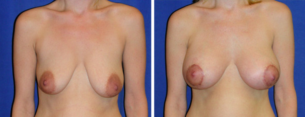 "34 years old, 5'6"", 120lbs, Peri-areolar Breast Lift with 400cc Left, 430cc Right Saline Breast Implants, Preop 36B to Postop 32D"