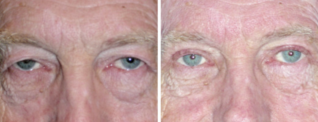 "69 years old, 5'8"", 155lbs, male, upper eyelid lift"