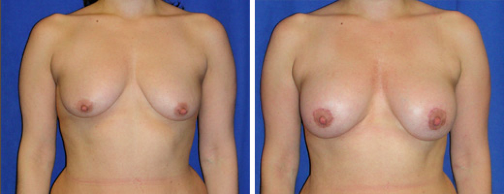"36 years old, 5'7"", 157lbs, Peri-areolar Breast Lift with 325cc Silicone Breast Implants, Preop 34C"
