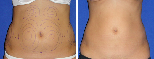 "31 years old, 5'2"", 115lbs, 500g removed, liposuction of the abdomen"