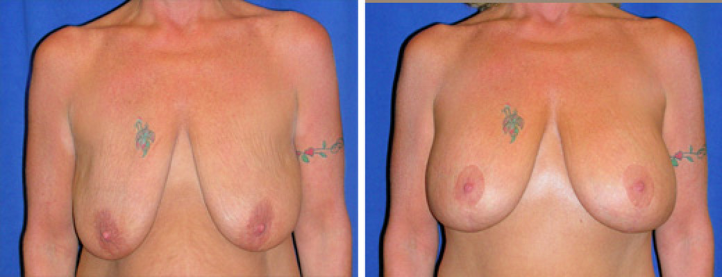 "47 years old, 5'4"", 149lbs, Peri-areolar Breast Lift with 350cc Silicone Implants, Preop 36D to Postop 36D"