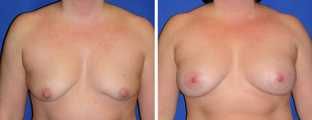 "43 years old, 5'4"", 168lbs, Peri-areolar Breast Lift with 350cc L, 300cc R Saline Implants, Preop 38B to Postop 38C"