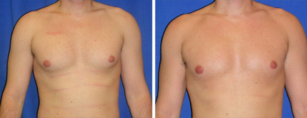 "27 years old, 6'0"", 185lbs, 350g removed, liposuction of the chest"
