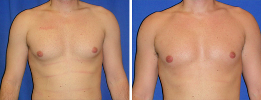 Liposuction – Chest