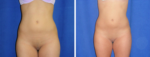 Liposuction – Abdomen, Flanks, Thighs