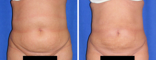 349-liposuction-st-charles-plastic-surgery-dr-ghaderi-featured