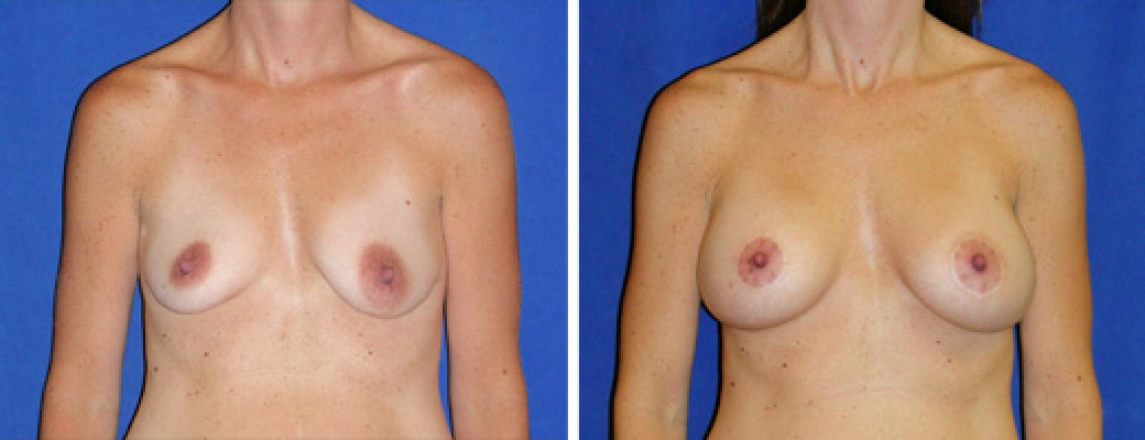 "36 years old, 5'4"", 114lbs, Peri-areolar Breast Lift with 300cc Saline Implants, Preop 34A to Postop 34C"