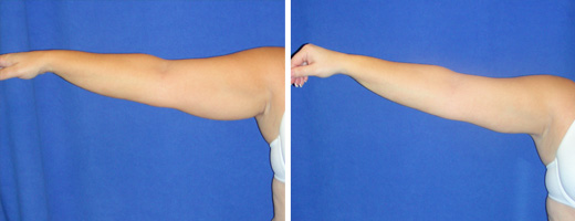 "36 years old, 5'3"", 180lbs, 550g removed, liposuction of upper arms"