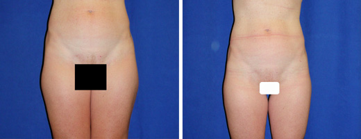 Liposuction – Hips, Thighs
