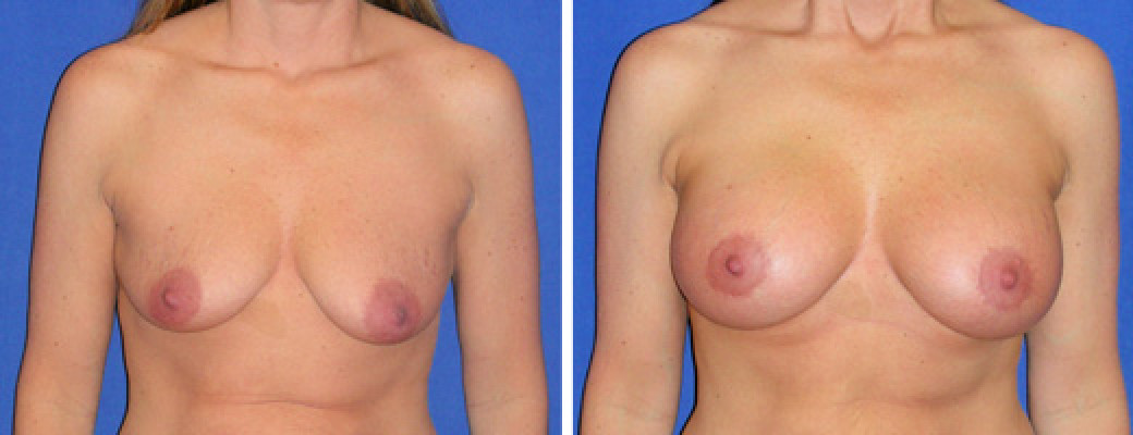 "39 years old, 5'3"", 126lbs, Peri-areolar Breast Lift with 360cc Saline Implants, Preop 36B to Postop 34D"