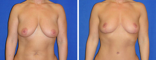 "36 yrs old, 5'7"", 160lbs, Inverted-T Breast Lift, Preop 38D to Postop 38C"