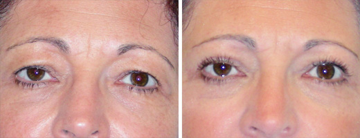 "50 years old, 5'8"", 140lbs, upper eyelid lift"