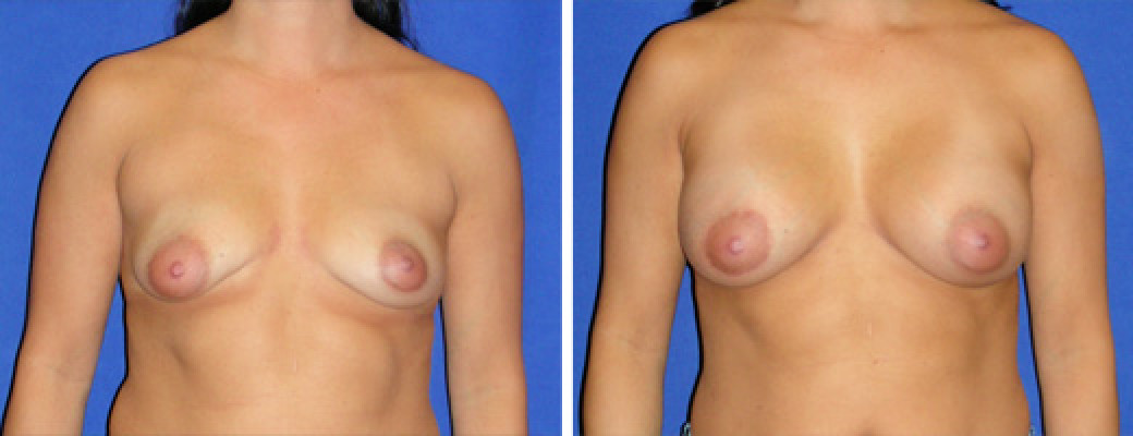 "41 years old, 5'2"", 132lbs, Right Breast Peri-areolar Lift with 275cc Saline Implants, Preop 34B to Postop 34C"