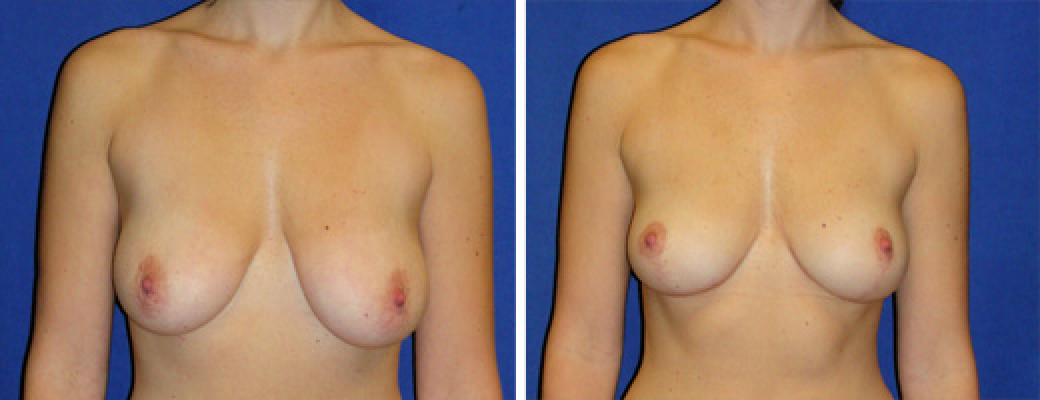 "35 years old, 5'7"", 127lbs, Inverted-T Breast Lift, Preop 34D to Postop 34C"