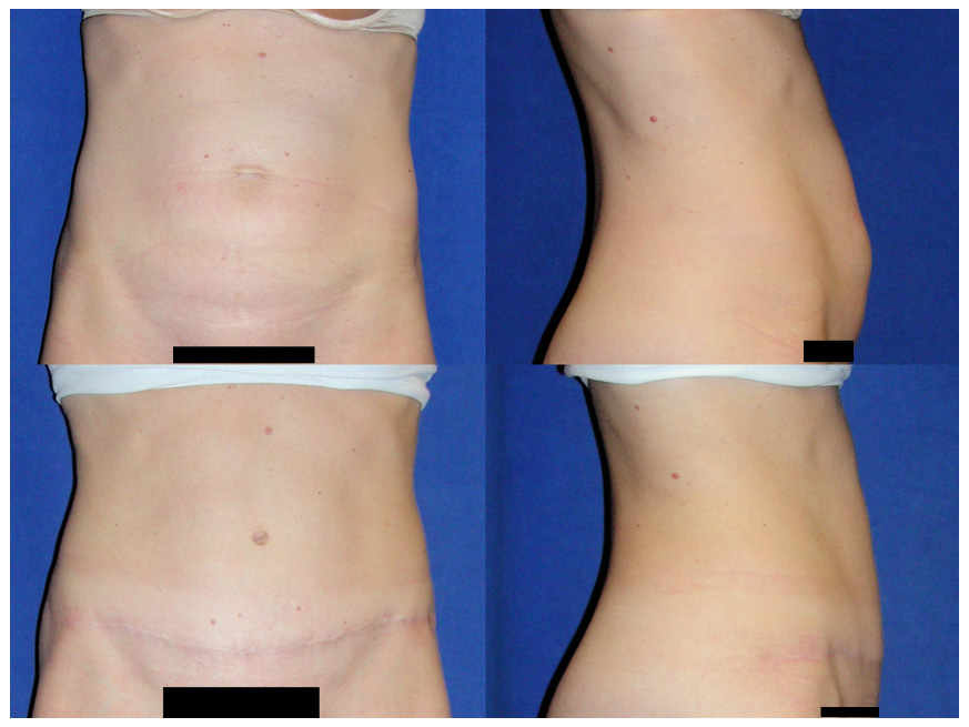 tummy tuck essay Tummy tuck belt is the non-surgical way to erase inches from your tummy slim fat off of your belly without diet or exercise using the tummy tuck slimming system.