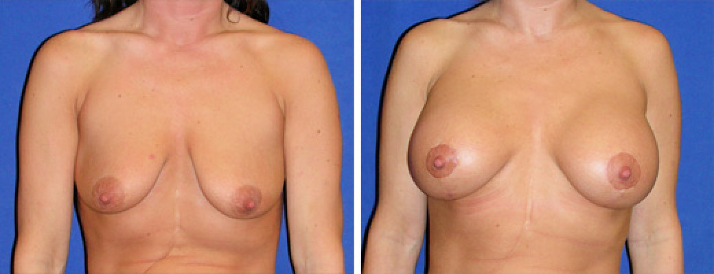 "30 years old, 5'1"", 120lbs, Inframammary Breast Lift with 375cc Silicone Implants, Preop 34C to Postop 34D"