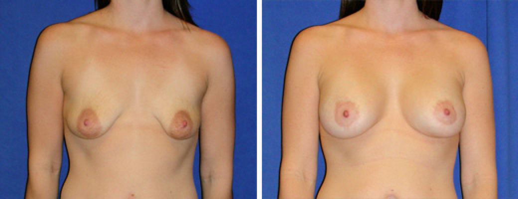 "33 years old, 5'6"", 138lbs, Peri-areolar Breast Lift with 375cc Silicone Implants, Preop 36A to Postop 36D"