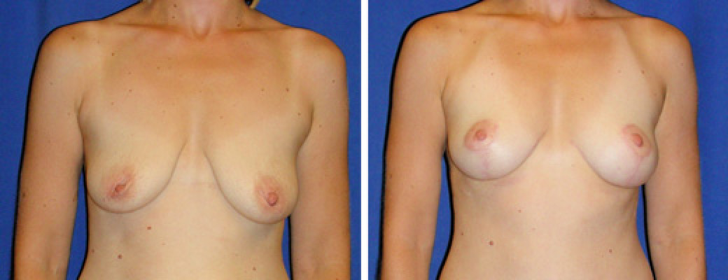 "33 years old, 5'8"", 135lbs, Inverted-T Breast Lift, Preop 36B to Postop 34C"