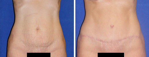 Photo Gallery - Abdominoplasty (Tummy Tuck)*