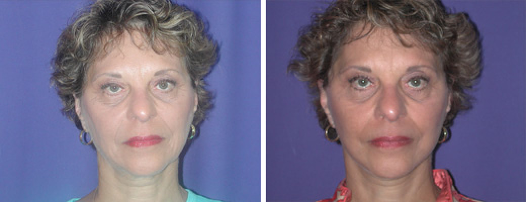 63 years old, mini face lift