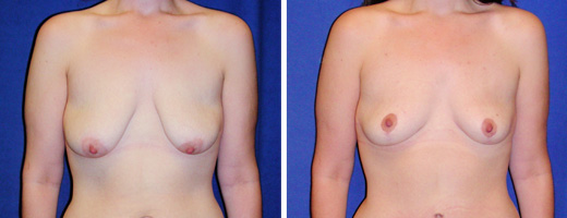 "23 years old, 5'10"", 140lbs, Inverted-T Breast Lift, Preop 36C to Postop 36C"