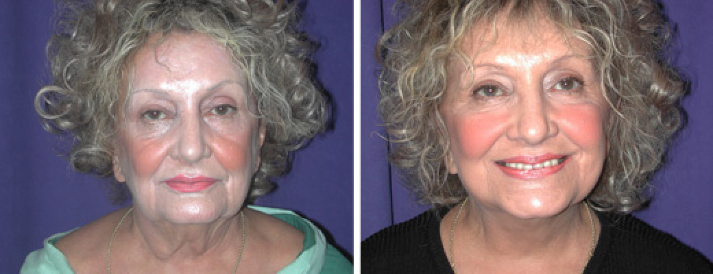 """74 years old, 5'3"""", 155lbs face lift"""