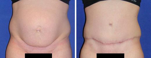 6784-tummy-tuck-st-charles-plastic-surgery-dr-ghaderi-featured-b