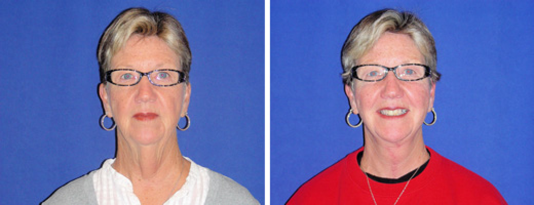 """64 years old, 5'2"""", neck lift"""