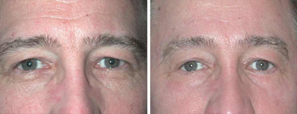 "50 years old, 6'3"", 200lbs, male, lower eyelid lift"